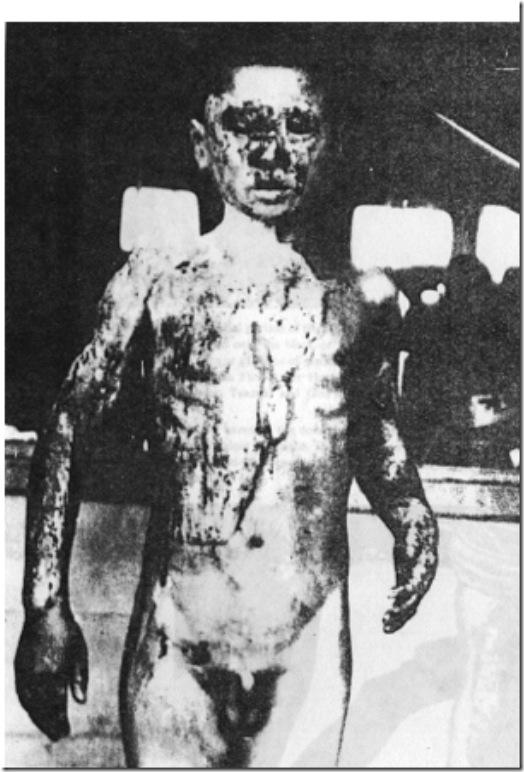 Hiroshima victim 2